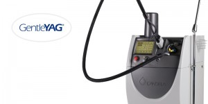 GentleYAG-laser