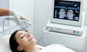 Ultherapy-procedure