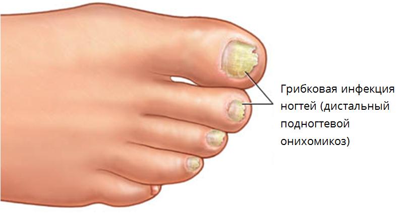 ногти желтые от грибка