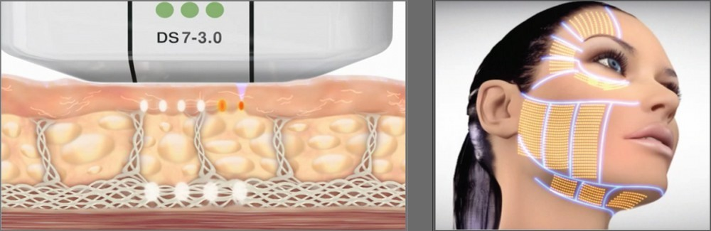 ultherapy-works