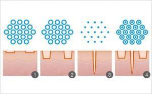 frakcionētā atjaunošana ar lāzeru CO2